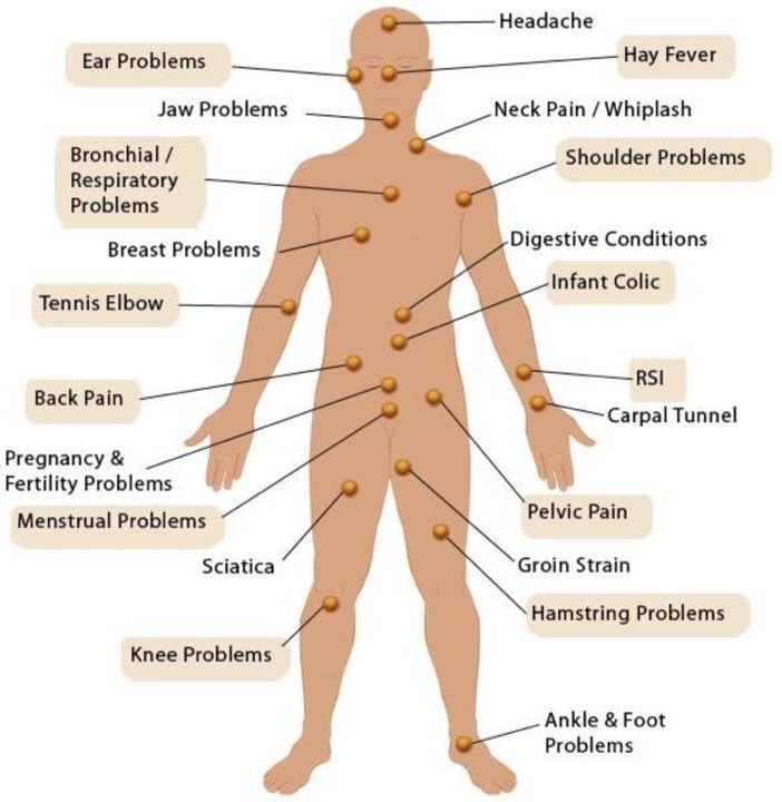 Conditions that respond well to Bowen Therapy